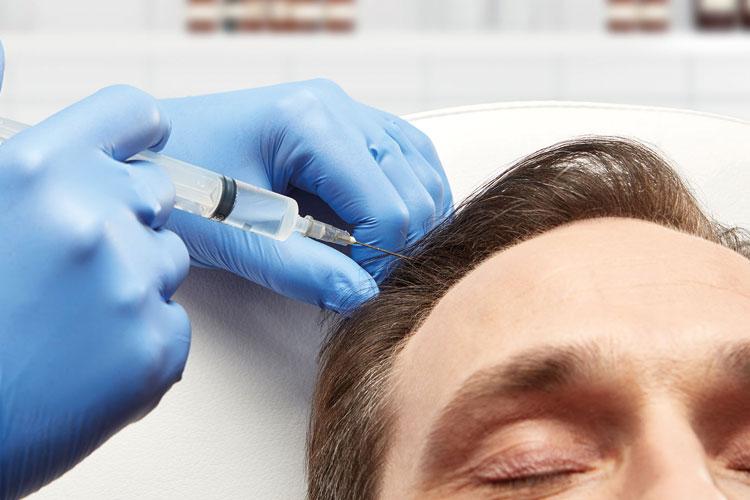 prp hair treatment istanbul