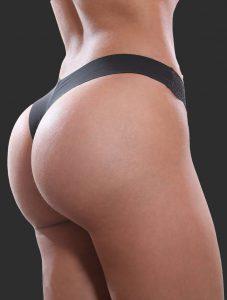Brazilian-Butt-Lift