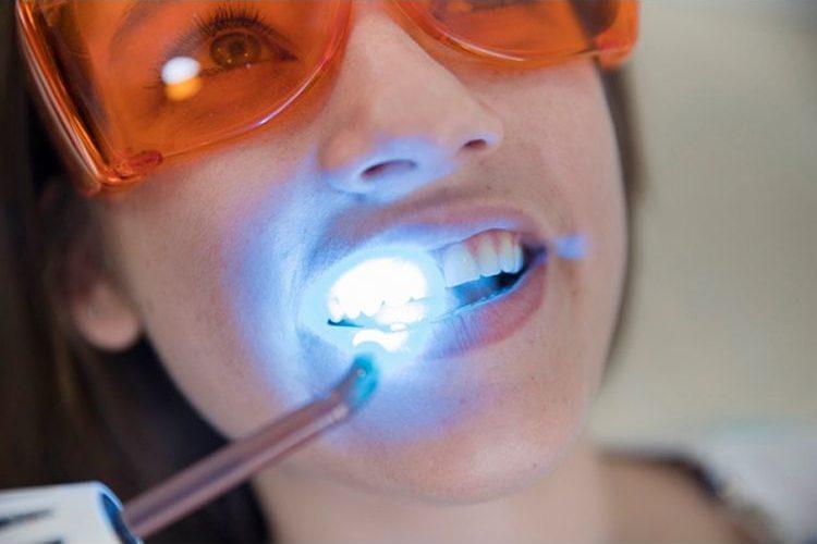 Dental-laser