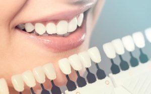 Dental-veneer